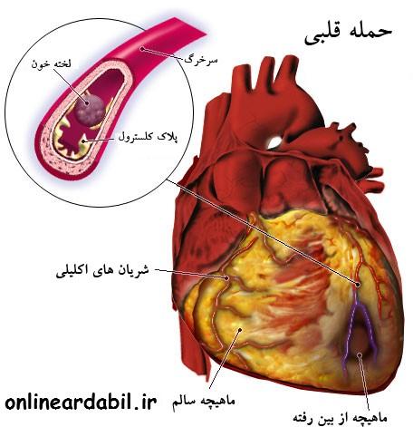 حمله قلبی چیست