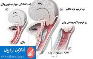عمل تنگ کردن (درمان گشادی) واژن