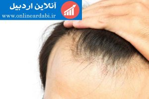 ریزش مو وراه های درمان خانگی ریزش مو
